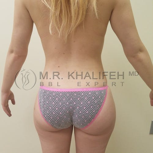 Flank-Lower Back Liposuction Gallery - Patient 3721361 - Image 2