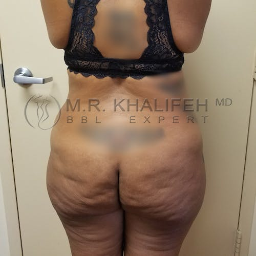 Flank-Lower Back Liposuction Gallery - Patient 3721402 - Image 1
