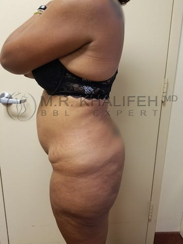 Flank-Lower Back Liposuction Gallery - Patient 3721402 - Image 5
