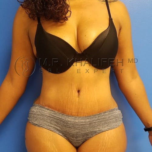 Flank-Lower Back Liposuction Gallery - Patient 3721402 - Image 8