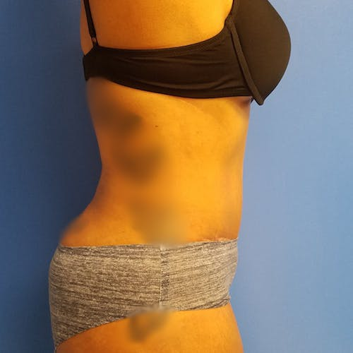 Flank-Lower Back Liposuction Gallery - Patient 3721461 - Image 4