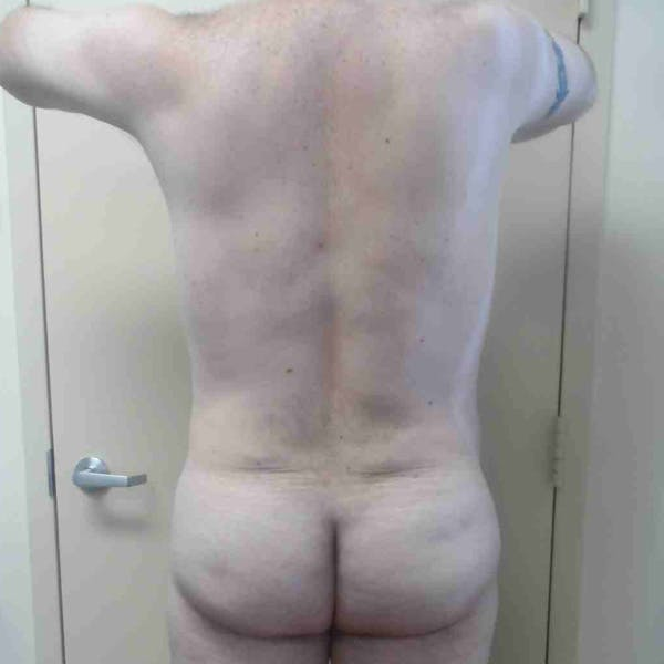 Flank-Lower Back Liposuction Gallery - Patient 3721490 - Image 2
