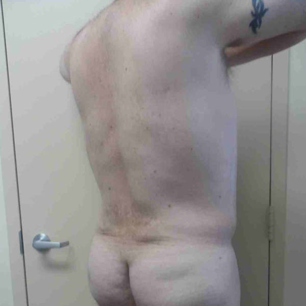 Flank-Lower Back Liposuction Gallery - Patient 3721490 - Image 4