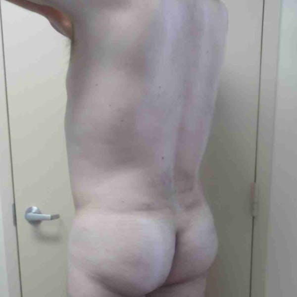 Flank-Lower Back Liposuction Gallery - Patient 3721490 - Image 6