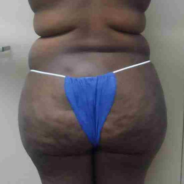 Flank-Lower Back Liposuction Gallery - Patient 3721580 - Image 2