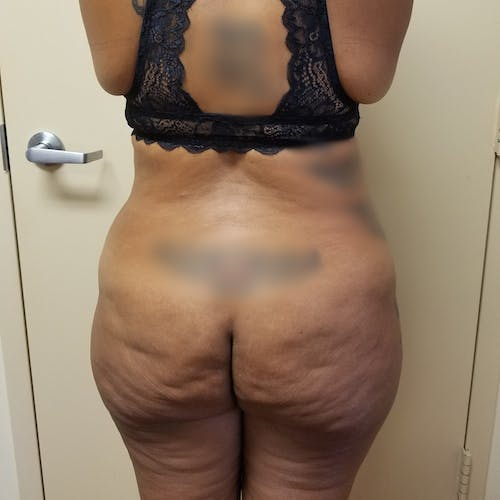 Flank-Lower Back Liposuction Gallery - Patient 3721633 - Image 1