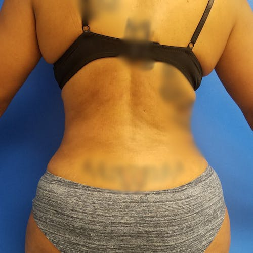 Flank-Lower Back Liposuction Gallery - Patient 3721633 - Image 2
