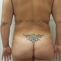 Flank-Lower Back Liposuction Gallery - Patient 3721683 - Image 1