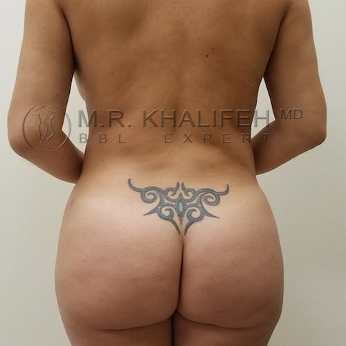 Flank-Lower Back Liposuction Gallery - Patient 3721683 - Image 2
