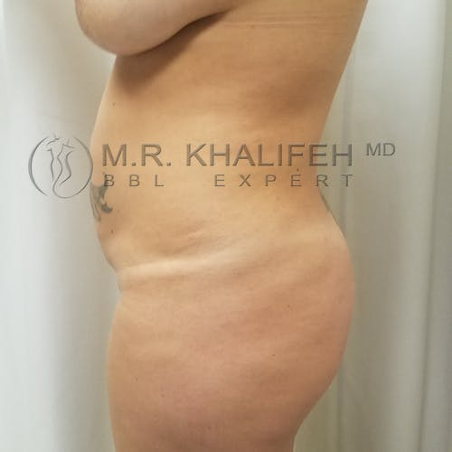 Flank-Lower Back Liposuction Gallery - Patient 3721683 - Image 3