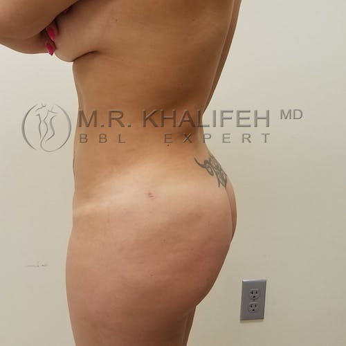 Flank-Lower Back Liposuction Gallery - Patient 3721683 - Image 4