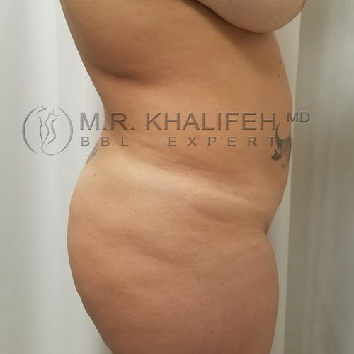 Flank-Lower Back Liposuction Gallery - Patient 3721683 - Image 5