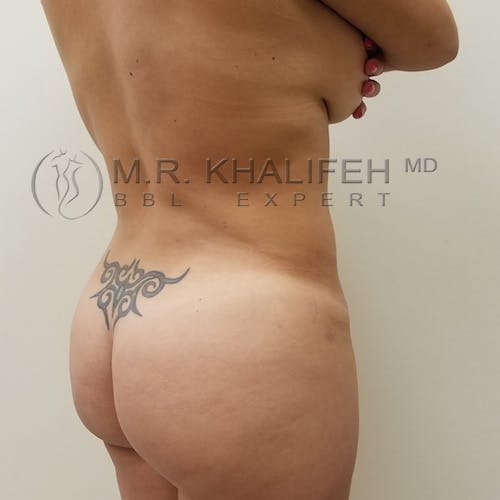 Flank-Lower Back Liposuction Gallery - Patient 3721683 - Image 6