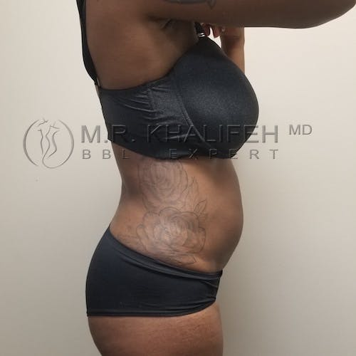 Flank-Lower Back Liposuction Gallery - Patient 3721794 - Image 2