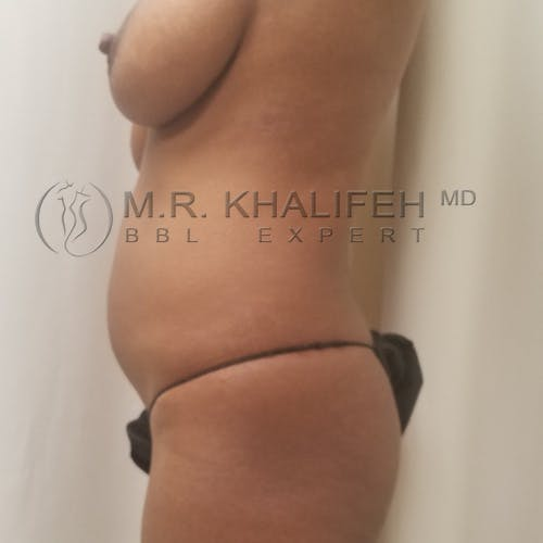 Flank-Lower Back Liposuction Gallery - Patient 3721794 - Image 5