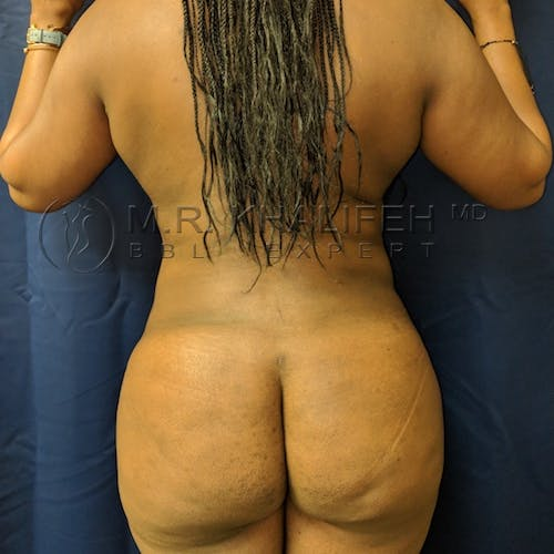 Flank-Lower Back Liposuction Gallery - Patient 3721837 - Image 2