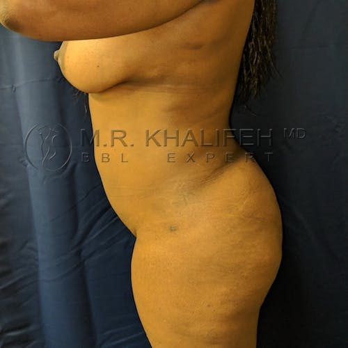 Flank-Lower Back Liposuction Gallery - Patient 3721837 - Image 4