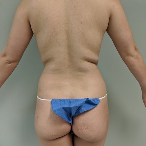 Flank-Lower Back Liposuction Gallery - Patient 3721883 - Image 1