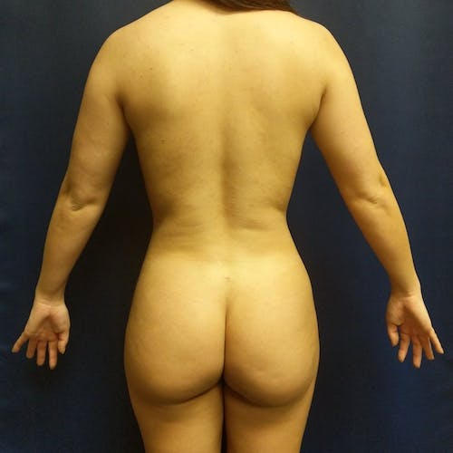 Flank-Lower Back Liposuction Gallery - Patient 3721883 - Image 2