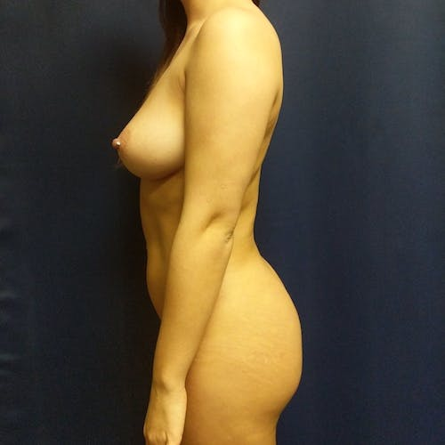 Flank-Lower Back Liposuction Gallery - Patient 3721883 - Image 4