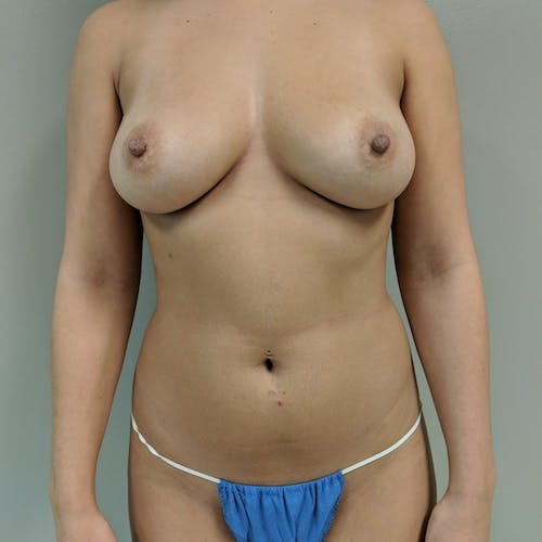 Flank-Lower Back Liposuction Gallery - Patient 3721883 - Image 5
