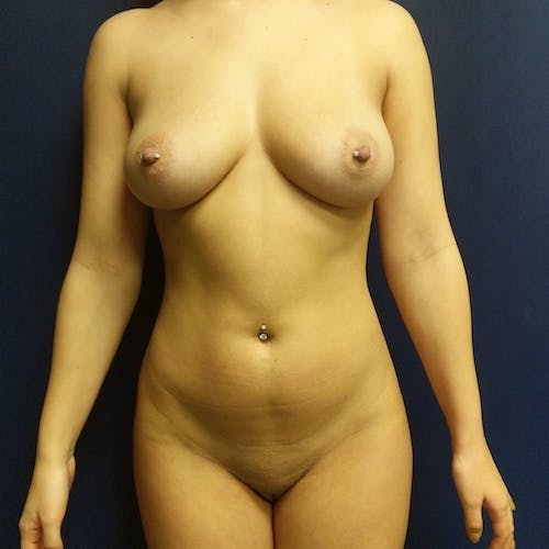 Flank-Lower Back Liposuction Gallery - Patient 3721883 - Image 6