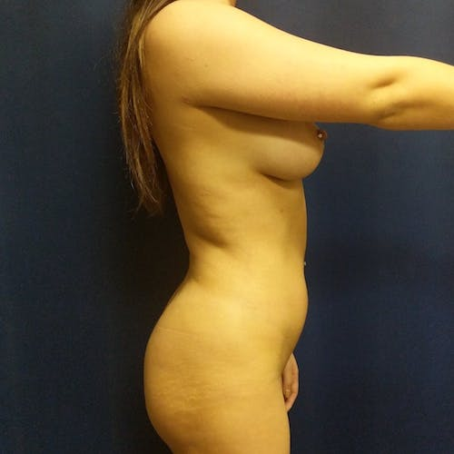 Flank-Lower Back Liposuction Gallery - Patient 3721883 - Image 8