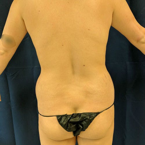 Flank-Lower Back Liposuction Gallery - Patient 3721923 - Image 1