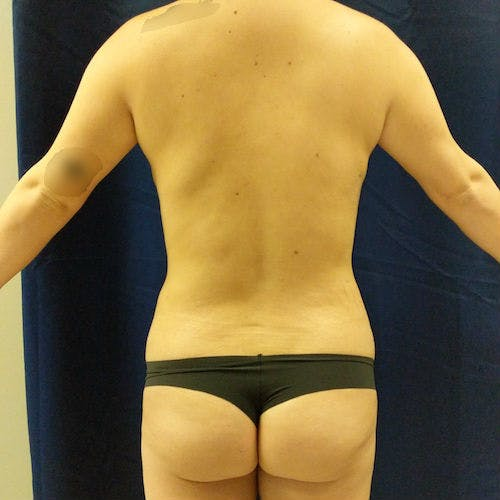 Flank-Lower Back Liposuction Gallery - Patient 3721923 - Image 2
