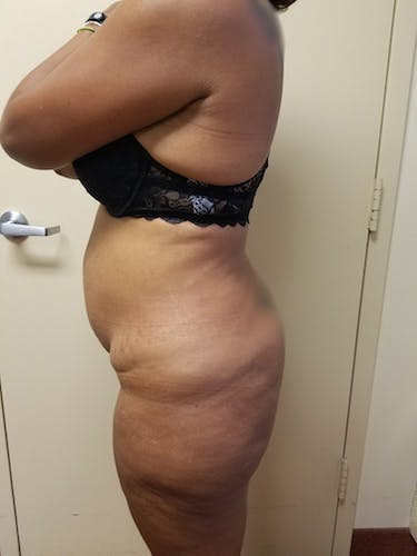 Flank-Lower Back Liposuction Gallery - Patient 3721962 - Image 5