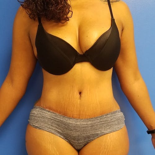 Flank-Lower Back Liposuction Gallery - Patient 3721962 - Image 8