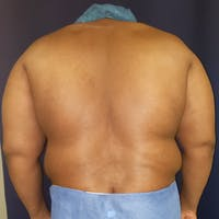 Flank-Lower Back Liposuction Gallery - Patient 3722062 - Image 1