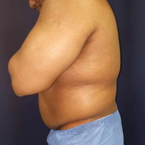 Flank-Lower Back Liposuction Gallery - Patient 3722062 - Image 3