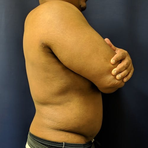 Flank-Lower Back Liposuction Gallery - Patient 3722062 - Image 8