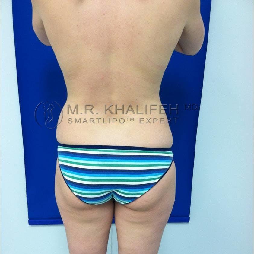 Midback-Bra Line Lipo Gallery - Patient 3761276 - Image 1