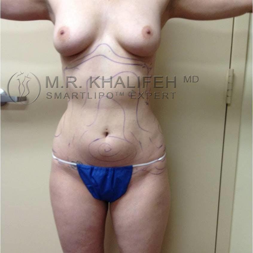 Midback-Bra Line Lipo Gallery - Patient 3761313 - Image 3