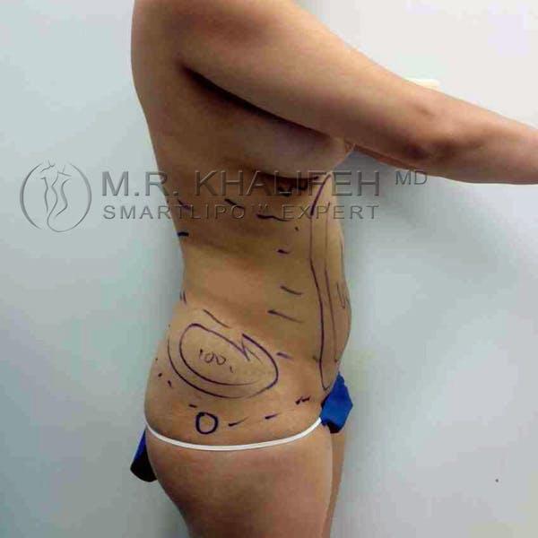 Midback-Bra Line Lipo Gallery - Patient 3761328 - Image 7