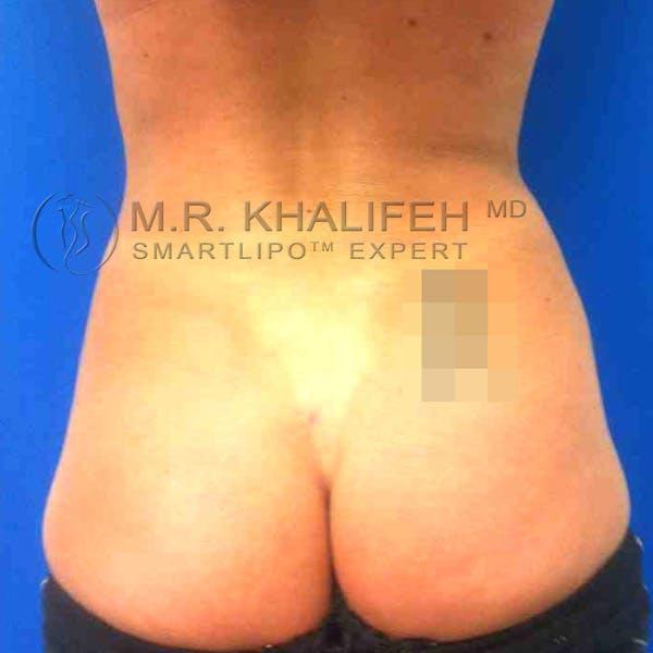 Midback-Bra Line Lipo Gallery - Patient 3761349 - Image 4
