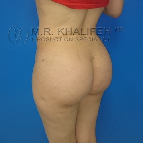 Midback-Bra Line Lipo Gallery - Patient 3761362 - Image 10