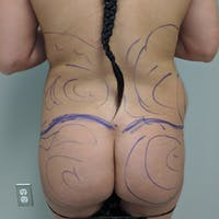 Midback-Bra Line Lipo Gallery - Patient 3761371 - Image 1