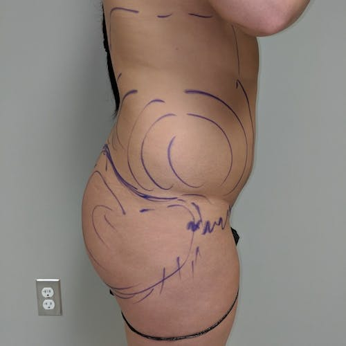 Midback-Bra Line Lipo Gallery - Patient 3761371 - Image 5
