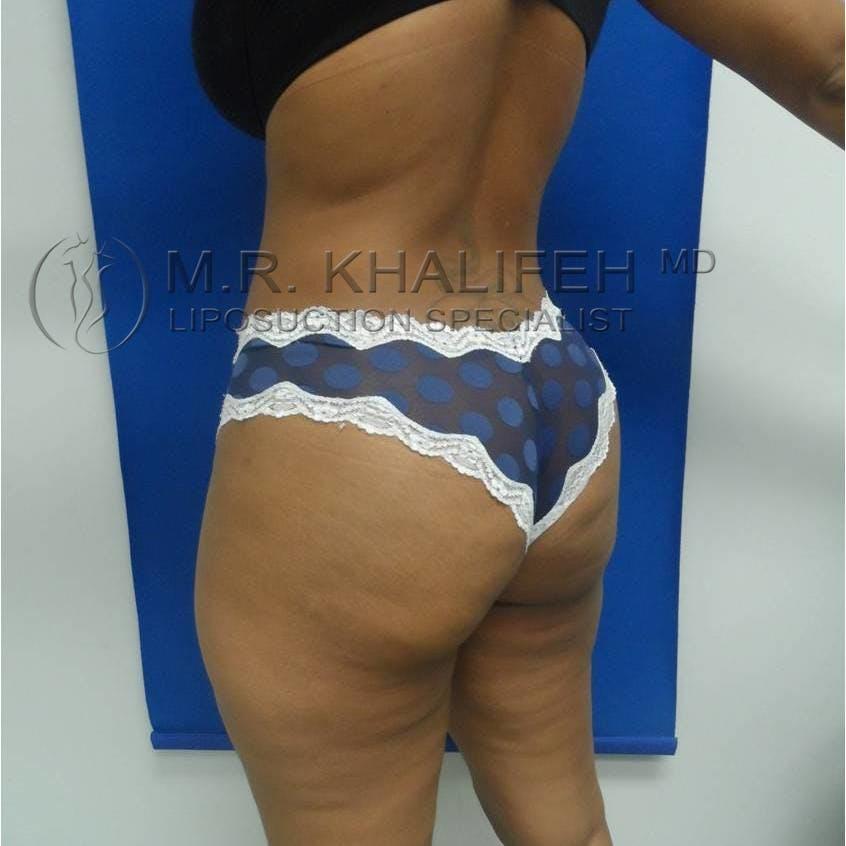 Midback-Bra Line Lipo Gallery - Patient 3761501 - Image 4