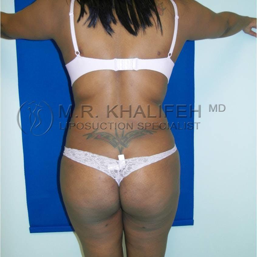 Midback-Bra Line Lipo Gallery - Patient 3761519 - Image 4
