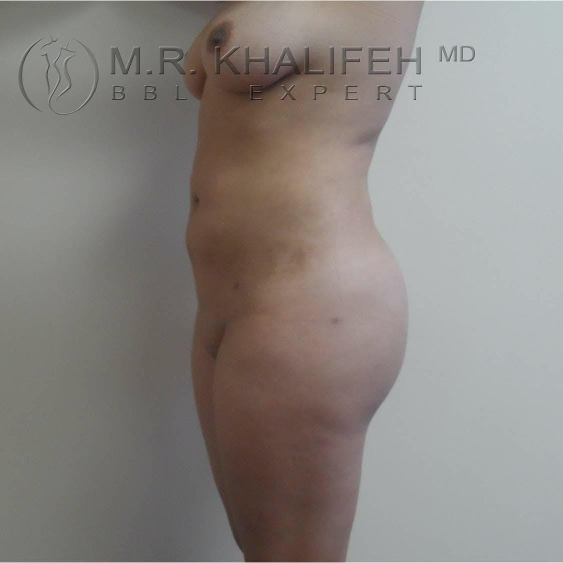 Midback-Bra Line Lipo Gallery - Patient 3761534 - Image 4