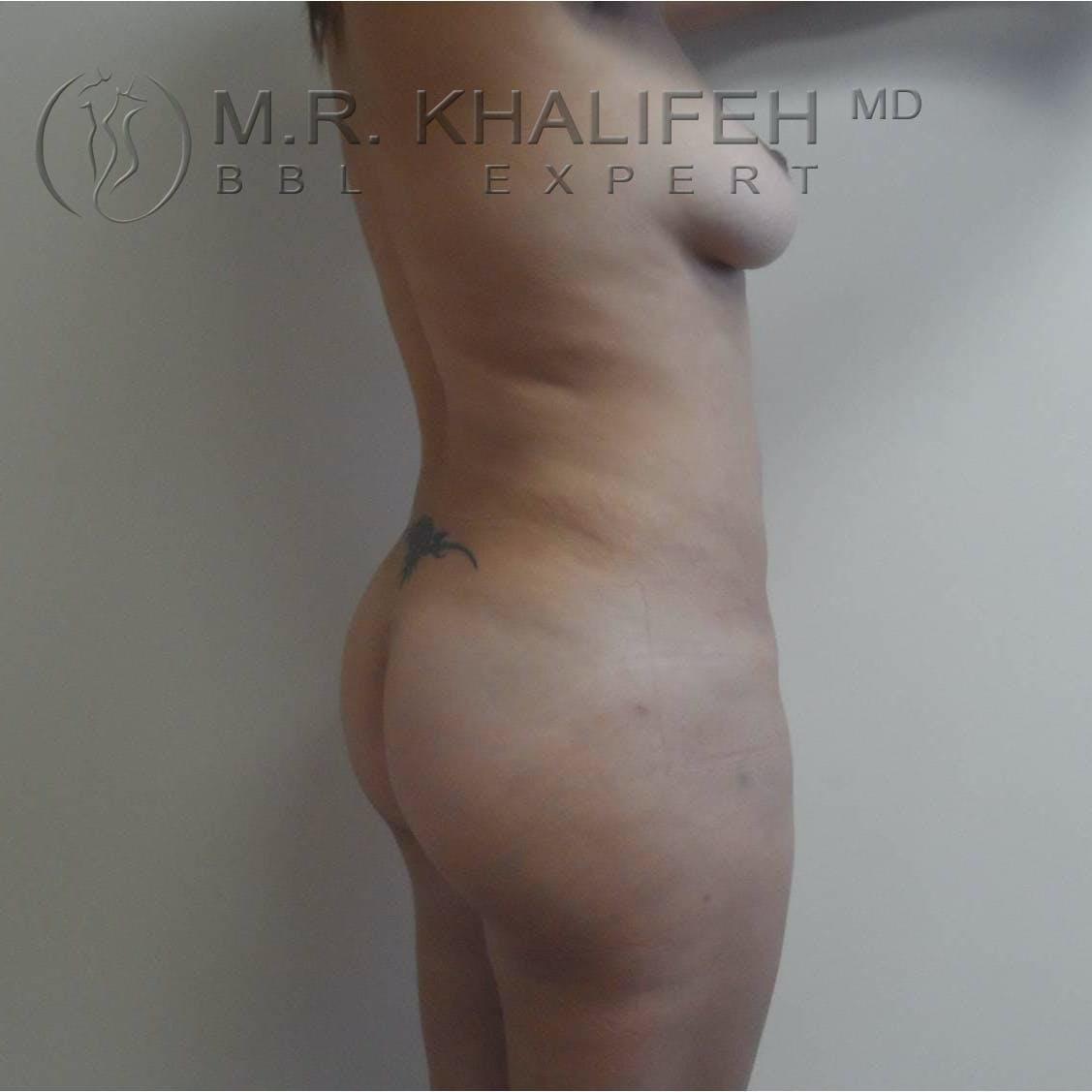 Midback-Bra Line Lipo Gallery - Patient 3761534 - Image 6