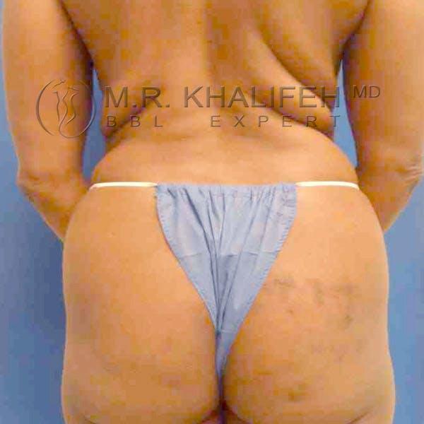 Midback-Bra Line Lipo Gallery - Patient 3761541 - Image 3