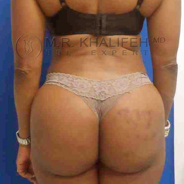 Midback-Bra Line Lipo Gallery - Patient 3761541 - Image 4