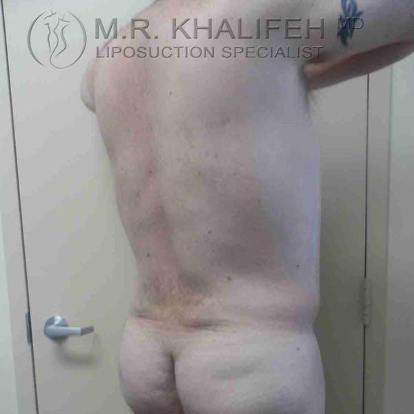 Midback-Bra Line Lipo Gallery - Patient 3761552 - Image 4