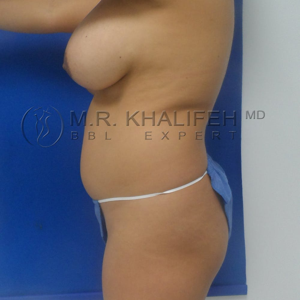 Midback-Bra Line Lipo Gallery - Patient 3761571 - Image 9