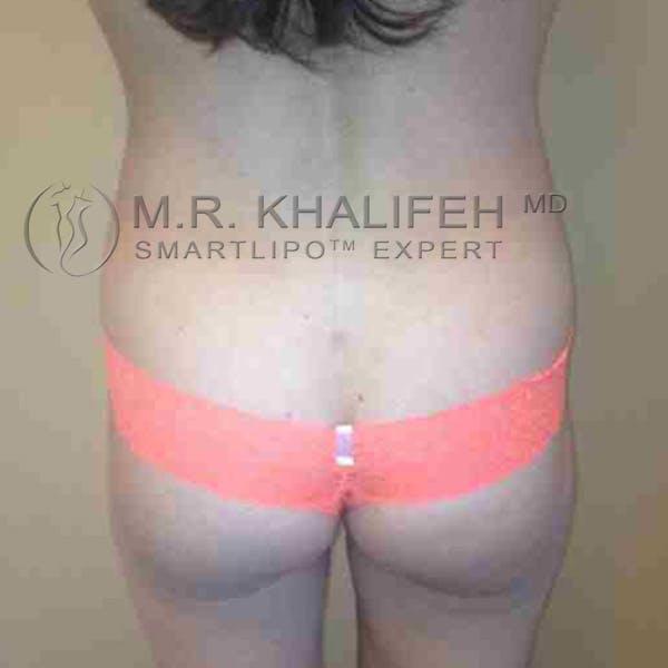 Midback-Bra Line Lipo Gallery - Patient 3761589 - Image 4